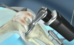 artroszkópos térd műtét